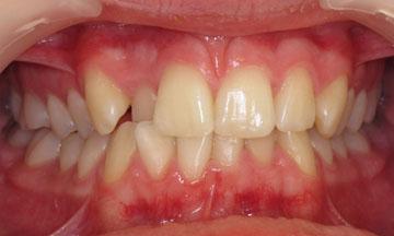 Teeth before orthodontic treatment in Hereford