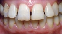 gaps between teeth before dental veneer placement in Hereford