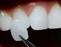 Dental veneer placement in Hereford